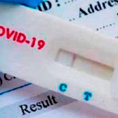 Venderán en farmacias un test de COVID 19 aprobado por ANMAT